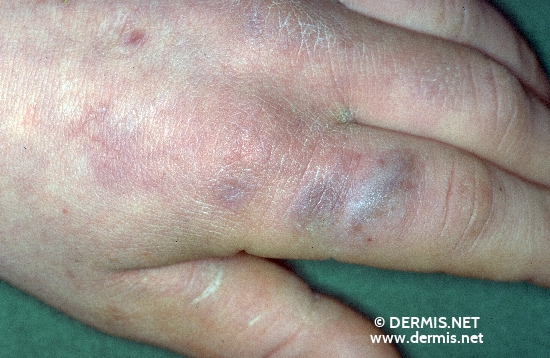 diagnosis: Stevens-Johnson Syndrome