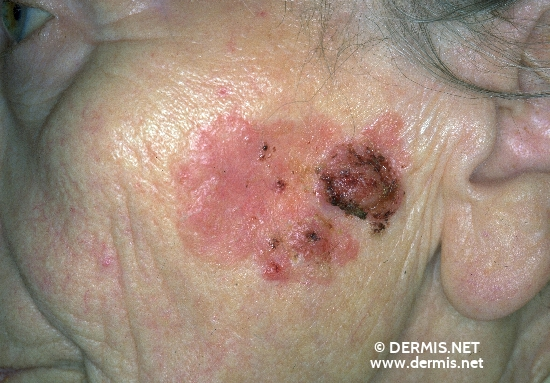 localisation: cheek diagnosis: Bowen's Carcinoma
