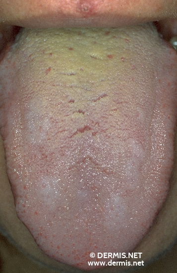 localisation: língua diagnóstico: Lichen Planus of the Mucosa