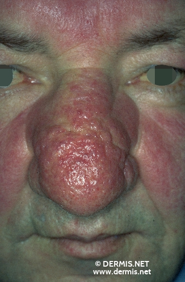 localisation: nose diagnosis: Rosacea Rhinophyma