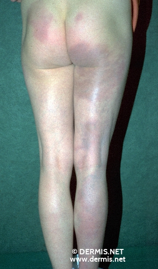 localisation: buttocks legs diagnosis: Acrodermatitis Chronica Atrophicans Herxheimer