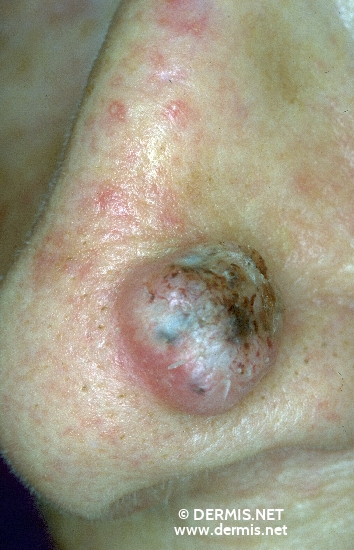 localisation: nose diagnosis: Squamous Cell Carcinoma