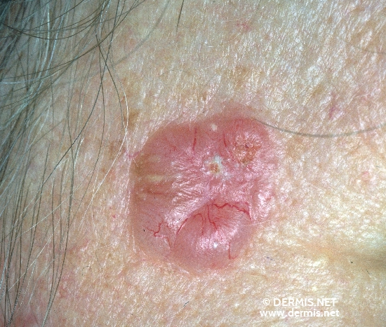localisation: temples diagnosis: Solid-Cystic Basal Cell Carcinoma