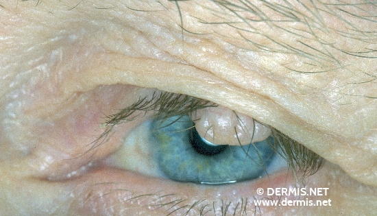 localisation: upper eyelid diagnosis: Nevocytic Nevus