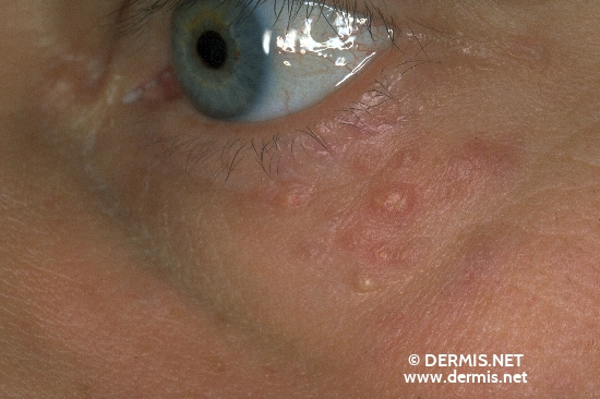 diagnosis: Lupus Miliaris Disseminatus (Faciei)