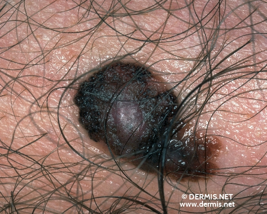 localisation: abdómen superior diagnóstico: Melanoma extensivo superficial (MES)