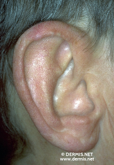 localisation: rim of the heilx diagnosis: Chondrodermatitis Nodularis Chronica Helicis (Winkler)
