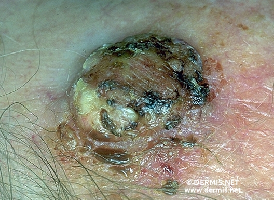 localisation: temples diagnosis: Squamous Cell Carcinoma