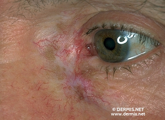 localisation: angle of the eye diagnosis: Radiodermatitis, Chronic Lentigo Maligna