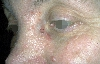 localisation: cheek, nose, diagnosis: Basal Cell Nevus Syndrome