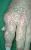localisation: digital metacarpo-phalangeal joint, digital proximal interphalangeal joint, digital distal interphalangeal joint, diagnosis: Gouty Tophus