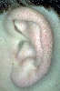 localisation: ear, diagnosis: Juvenile Spring Eruption