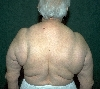 localisation: shoulder region, diagnosis: Launois-Bensaude's Lipomatosis