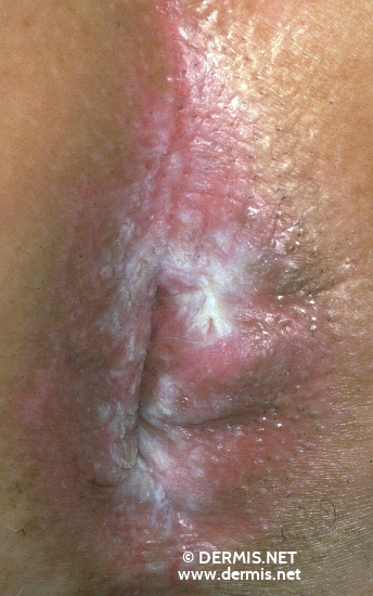 localisation: anogenital region diagnosis: Lichen Planus