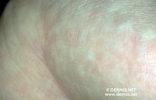 localisation: palms diagnosis: Focal Acral Hyperkeratosis