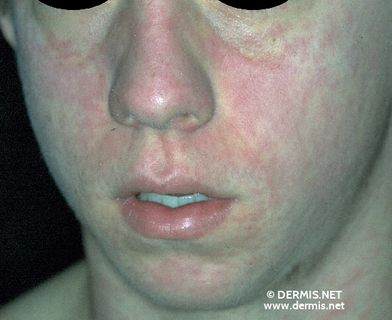 localisation: face diagnosis: Measles