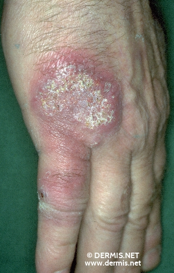 localisation: back of the hands diagnosis: Atypical Mycobacterial Infection