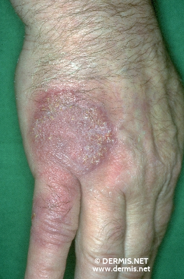diagnosis: Atypical Mycobacterial Infection