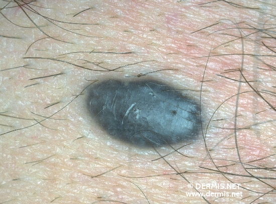 diagnosis: Blue Nevus