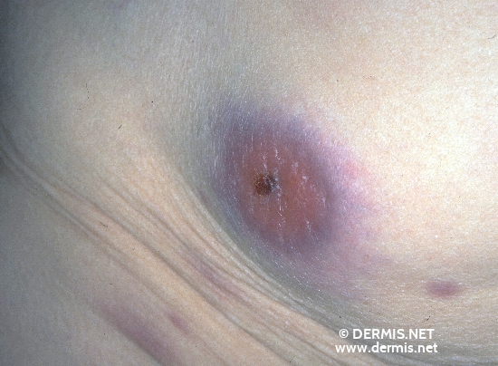 localisation: abdomen diagnosis: Lymphoma, B-Cell