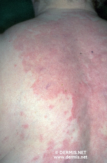 localisation: back diagnosis: Subacute Cutaneous Lupus Erythematosus SCLE