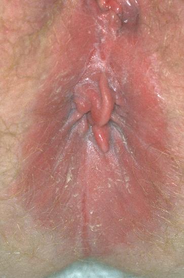 localisation: peri-anal region diagnosis: Anal Tag Psoriasis Inversa