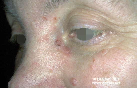 localisation: cheek nose diagnosis: Basal Cell Nevus Syndrome