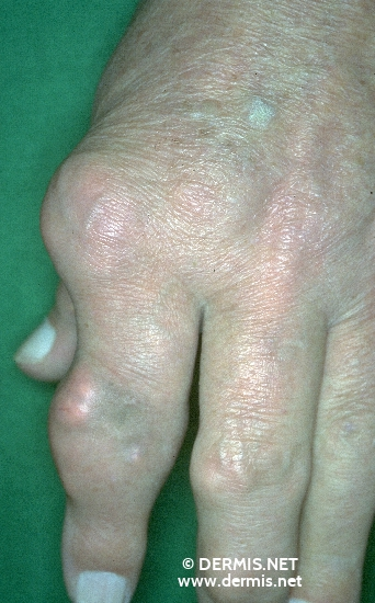 localisation: digital metacarpo-phalangeal joint digital proximal interphalangeal joint digital distal interphalangeal joint diagnosis: Gouty Tophus