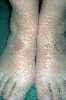 localisation: back of the feet, diagnosis: Granuloma Annulare