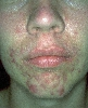 localisation: chin, cheek, diagnosis: Acne Papulopustulosa