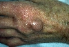 localisation: back of the hands, diagnosis: Lentigo Senilis, Ganglion