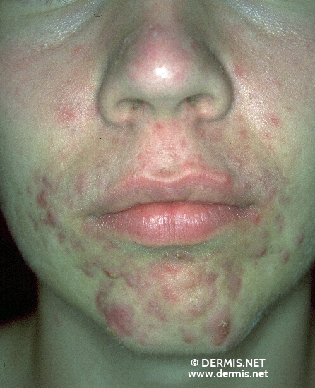 localisation: chin cheek diagnosis: Acne Papulopustulosa