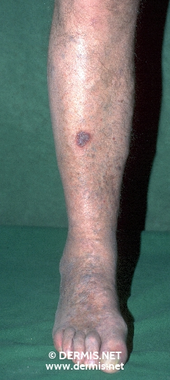 localisation: lower leg diagnosis: Acroangiodermatitis Mali Chronic Venous Insufficiency, Grade II