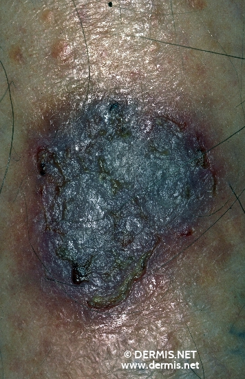 localisation: tibial diagnosis: Acroangiodermatitis Mali