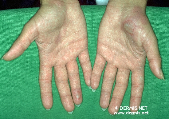 diagnosis: Erythema Exsudativum Multiforme, Minor Form