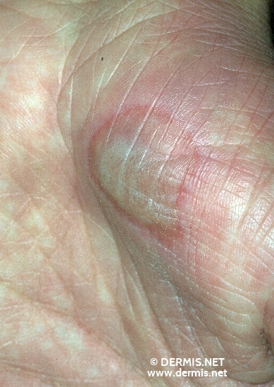 localisation: palms diagnosis: Erythema Exsudativum Multiforme, Minor Form