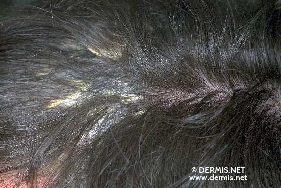 localisation: scalp diagnosis: Tinea Amiantacea
