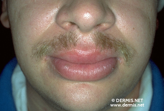 localisation: lips (skin) diagnosis: Cheilitis Granulomatosa of Miescher