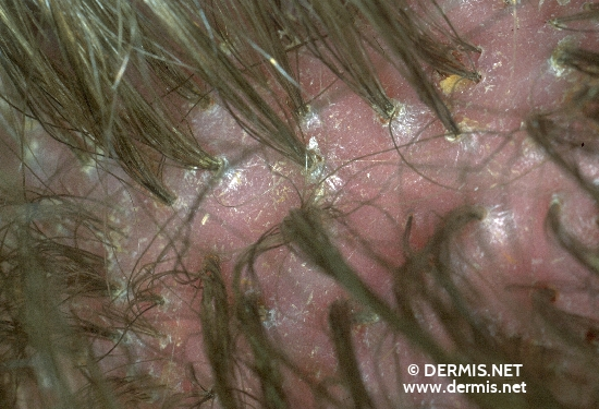 diagnosis: Primary Tufted Hairs