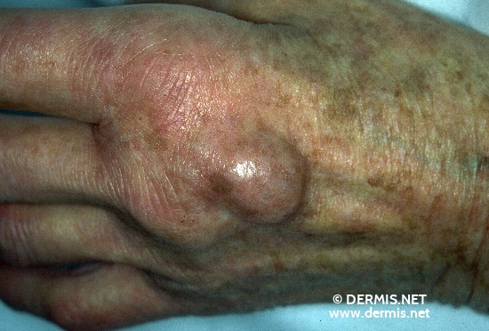 localisation: back of the hands diagnosis: Lentigo Senilis Ganglion