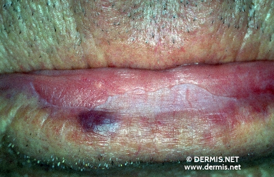 localisation: lower lip diagnosis: Actinic Cheilitis Venous Lake