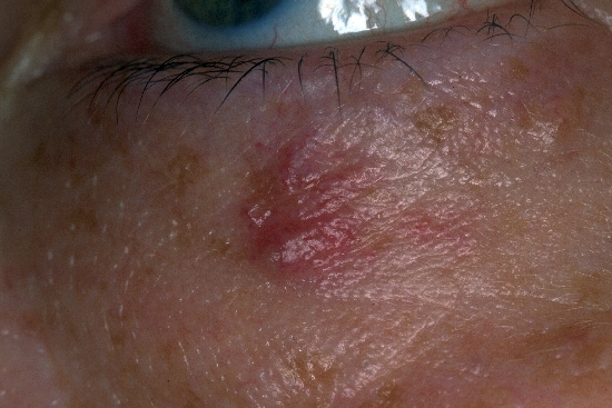 diagnosis: Hemangioma