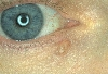localisation: lower eyelid, diagnosis: Solid-Cystic Basal Cell Carcinoma