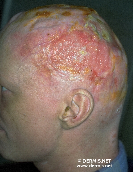 localisation: head diagnosis: Mycosis Fungoides T-Cell Lymphoma, Immunoblastic