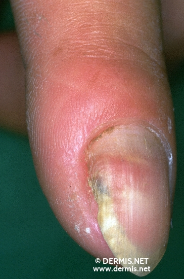 localisation: tip of the finger diagnosis: Verruca Vulgaris