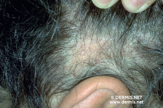localisation: temporal scalp diagnosis: Lichen Planus Planopilaris