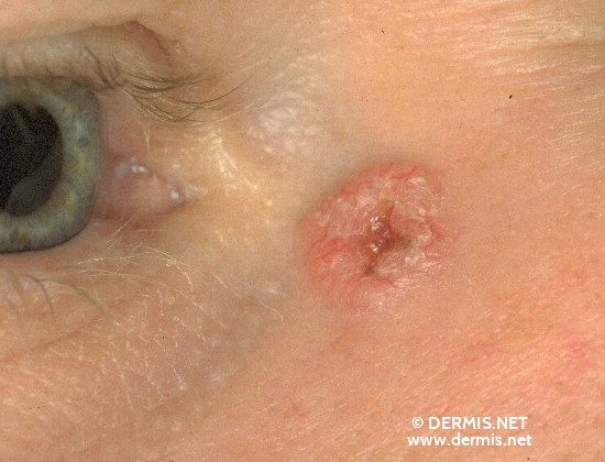 localisation: angle of the eye diagnosis: Solid-Cystic Basal Cell Carcinoma