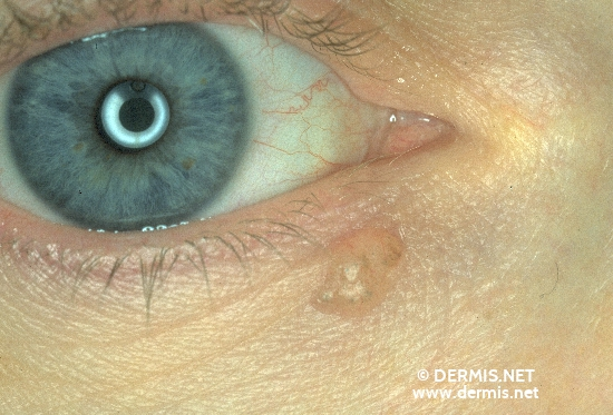 localisation: lower eyelid diagnosis: Solid-Cystic Basal Cell Carcinoma
