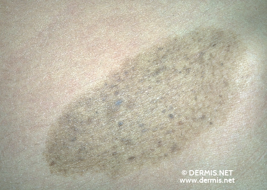 diagnosis: Nevus Spilus