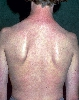 localisation: back, diagnosis: Atopic Eczema